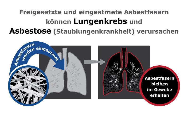 Eingeatmete Asbestfasern können Lungenkrebs auslösen
